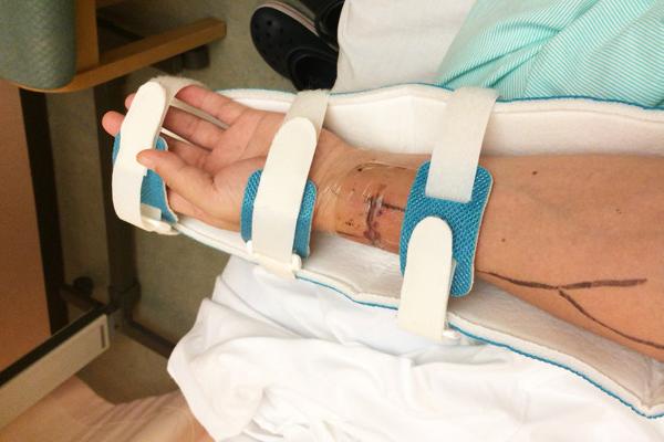シャント手術の費用と入院期間-内シャント手術した私の左腕