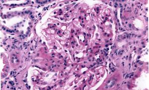 難病-IgA腎症