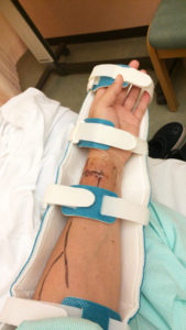 シャント手術をした左腕