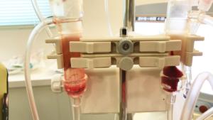 血液透析ーチャンバー詰まり
