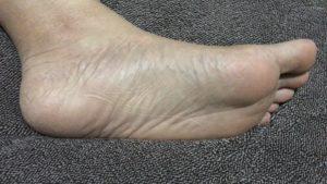 乾燥した足裏