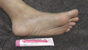 乾燥した足裏にヒルロイド-ソフト軟膏