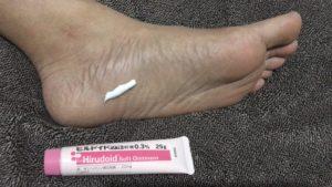 足裏に適量のヒルロイド-ソフト軟膏を出して塗り込む