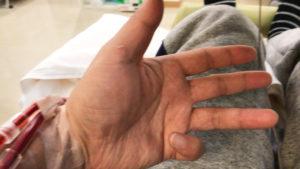 透析中にばね指になった