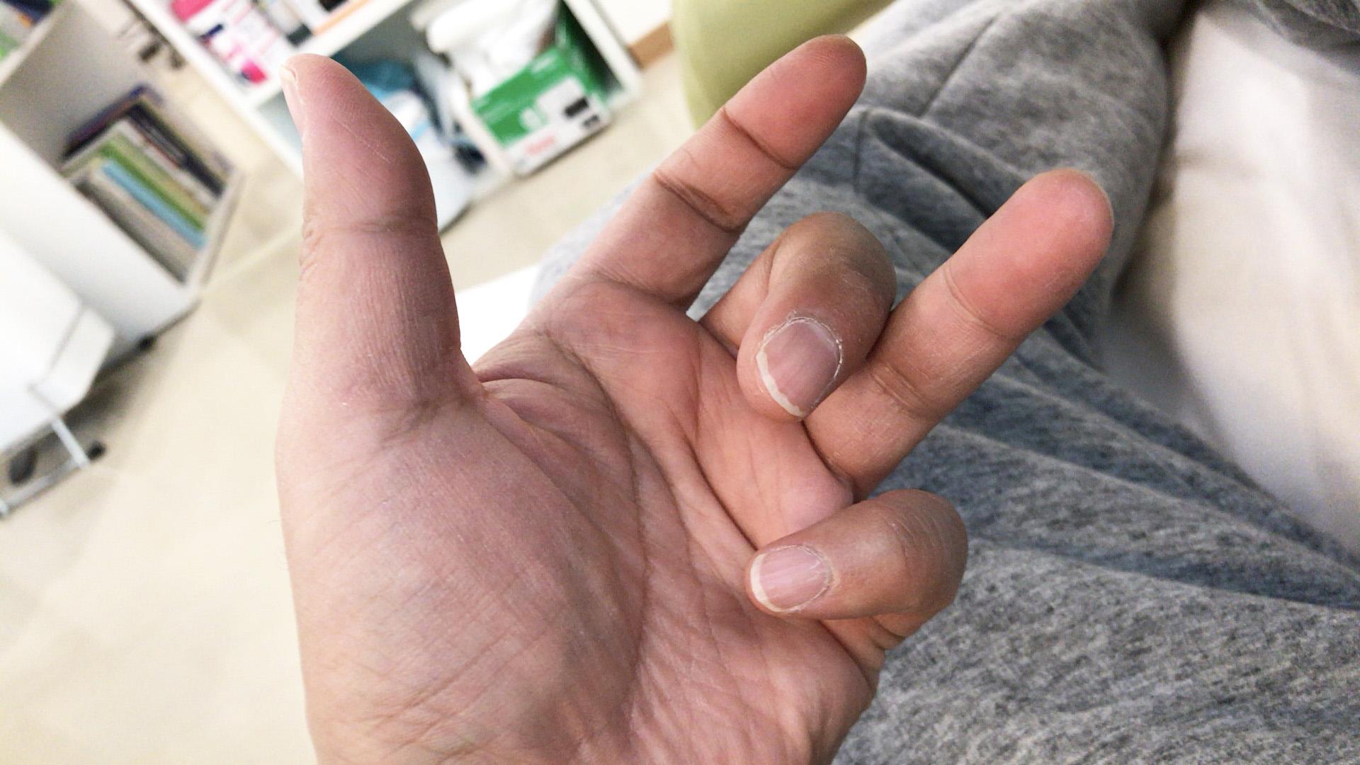 透析中にばね指になったから「グワシ」やってみた