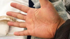 ばね指の手術をした右手