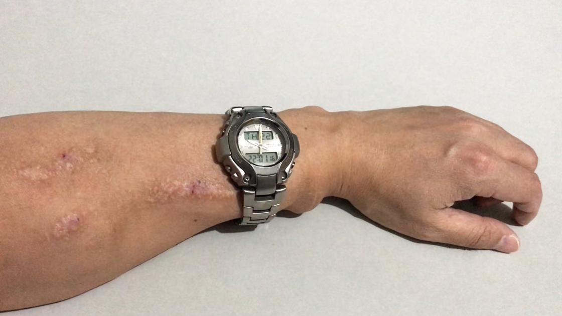 シャント腕に腕時計をすること