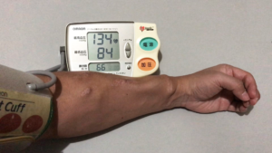 シャント腕で血圧測定をすること