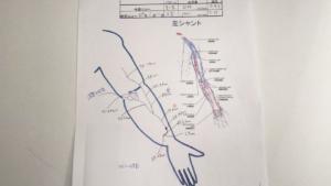 シャントエコー血管径