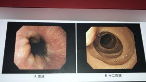 胃カメラ検査の結果(食道、十二指腸1)