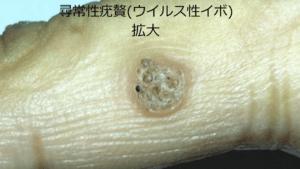 拡大した尋常性疣贅(ウイルス性イボ)