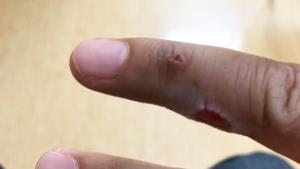 右手薬指の尋常性疣贅(ウイルス性イボ)術後一週間2