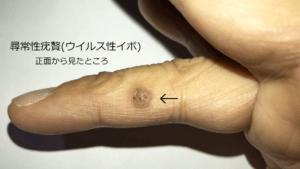 正面から見た尋常性疣贅(ウイルス性イボ)