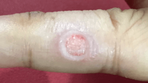 尋常性疣贅(ウイルス性イボ)手術あと拡大