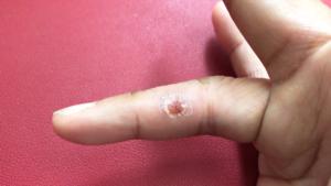 右手薬指の尋常性疣贅(ウイルス性イボ)経過1