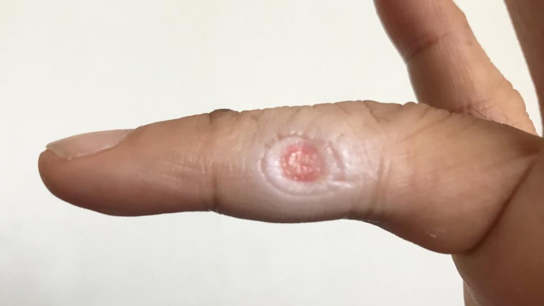 右手薬指の尋常性疣贅(ウイルス性イボ)術後10日目