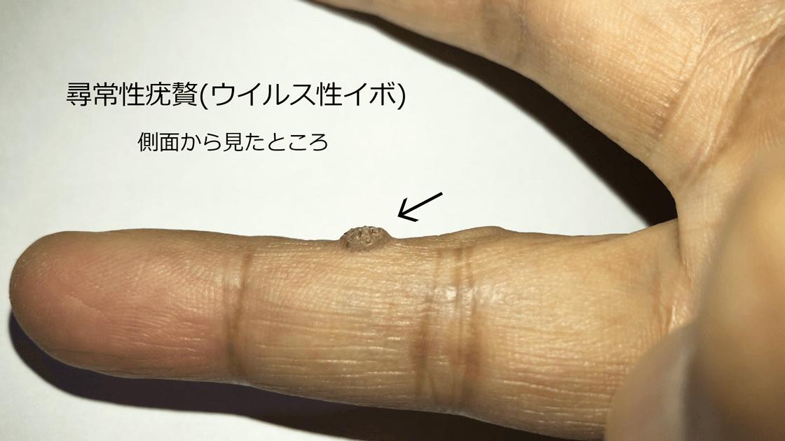 側面から見た尋常性疣贅(ウイルス性イボ)
