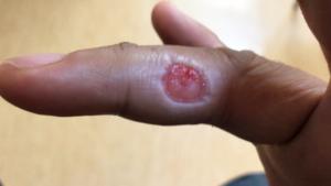 右手薬指の尋常性疣贅(ウイルス性イボ)術後一週間