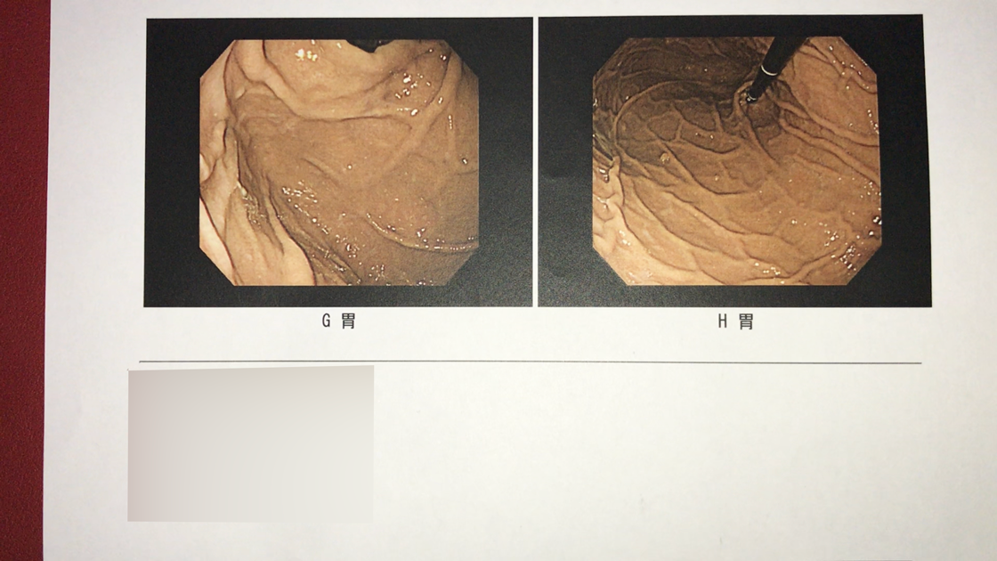 胃カメラ検査の結果(胃4、胃5)