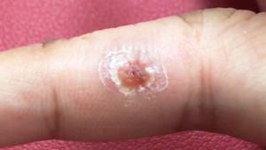 右手薬指の尋常性疣贅(ウイルス性イボ)経過2