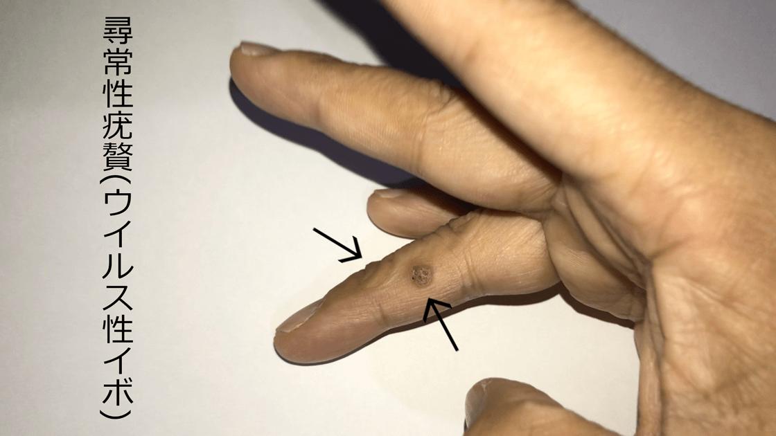右手薬指に二ヶ所の尋常性疣贅(ウイルス性イボ)