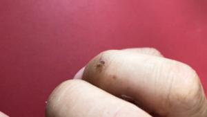 右手薬指の尋常性疣贅(ウイルス性イボ)経過3