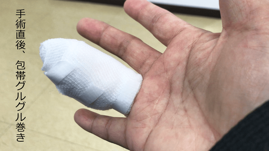 尋常性疣贅(ウイルス性イボ)の手術直後の様子
