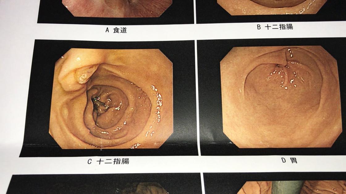 胃カメラ検査の結果(十二指腸2、胃1)