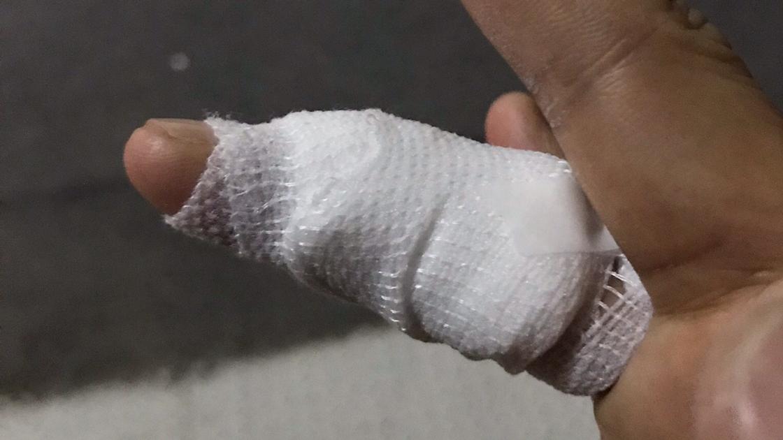 右手薬指の尋常性疣贅(ウイルス性イボ)術後一週間フランクフルト包帯から卒業