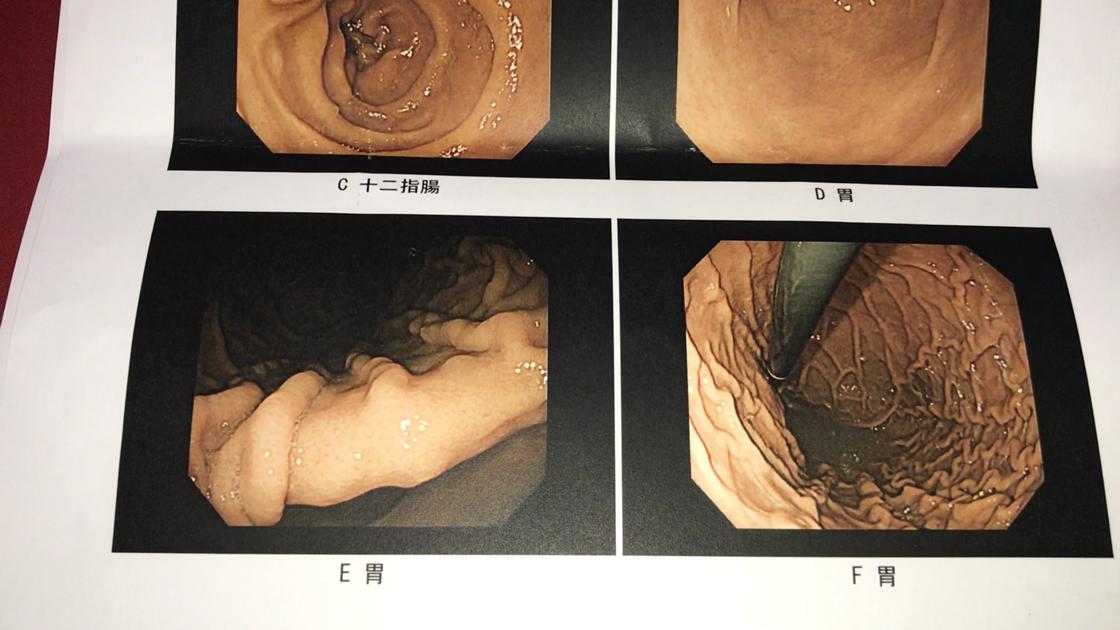 胃カメラ検査の結果(胃2、胃3)